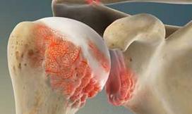 SHOUDLER ARTHRITIS. DYNAMIC OSTEOPATHS SOLIHULL