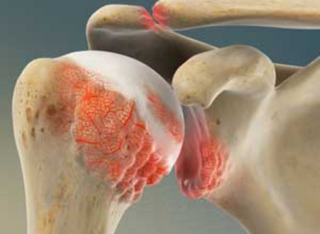 Shoulder Arthritis (osteoarthritis)