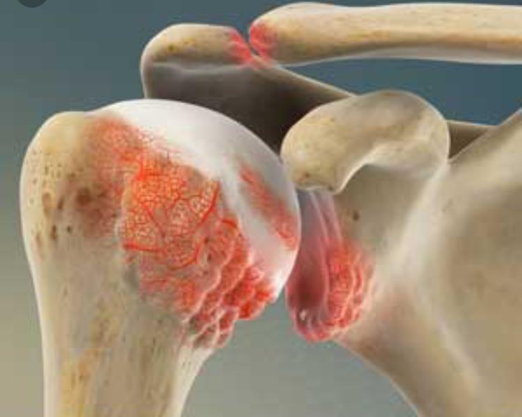 Shoulder Arthritis treatment Dynamic Osteopaths Solihull