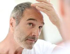 PRP TREATMENT FOR HAIR LOSS BIRMINGHAM