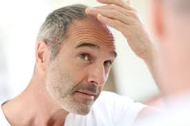 Effective hair loss treatment with PRP - Platelet Rich Plasma