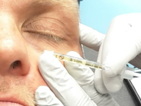 Eye Treatment: Tear Trough Filler. Dynamic Regenerative Medicine Solihull