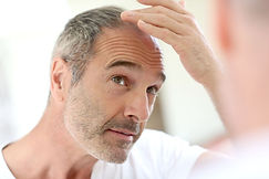 PRP platelet rich plasma treatment for hairloss Birmimgham