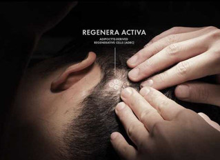Treating Hair Loss (Androgenetic alopecia) with the Regenera Cell Micrograft Transplant Birmingham