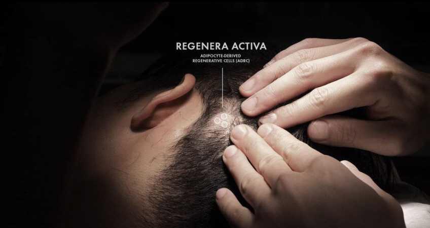Treating Hair Loss (Androgenetic alopecia) with the Regenera Cell Micrograft Transplant Birmingham