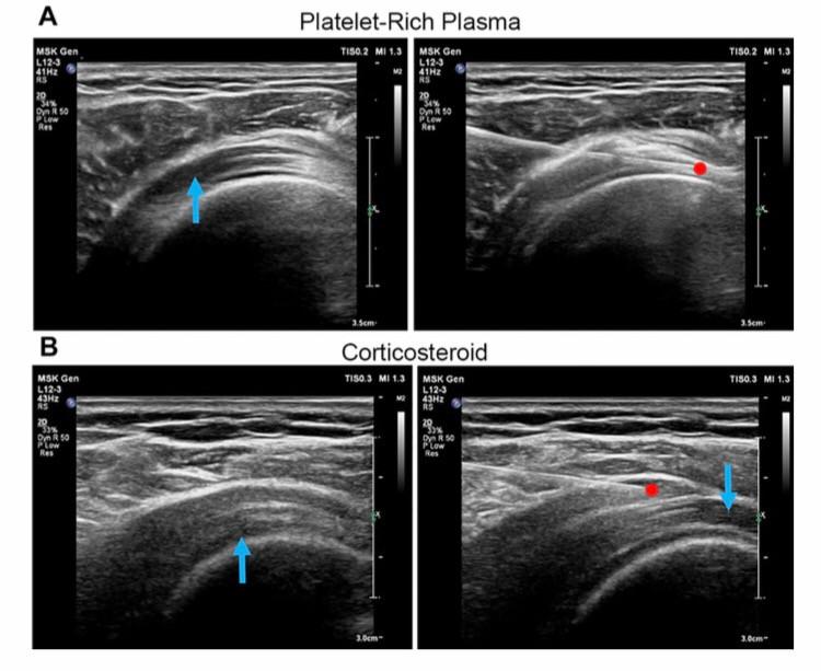 Chronic Shoulder Pain Treatment Birmingham: Effective Options
