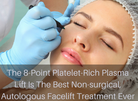 PRP. What is the vampire facelift and does it work?