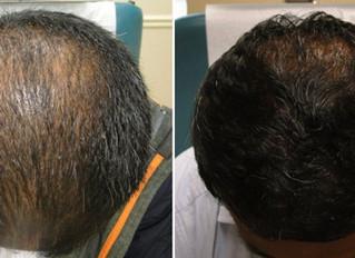PRP treatment for Hair Loss Birmingham. Dynamic Regenerative Medicine