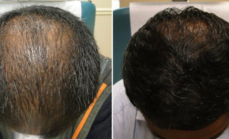 PRP treatment for Hair Loss Birmingham. Dynamic Regenerative Medicine