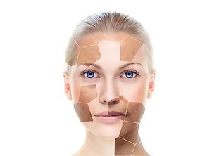 Skin pigmentation Treatment Birmingham Solihull