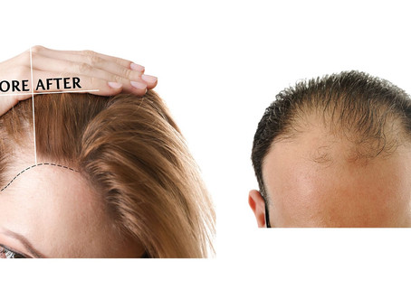 Beat hair loss with PRP treatment Birmingham