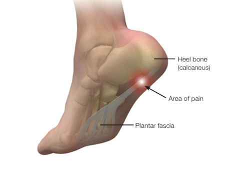 Planter Fasciitis Treatment. PRP Dynamic Osteopaths Solihull