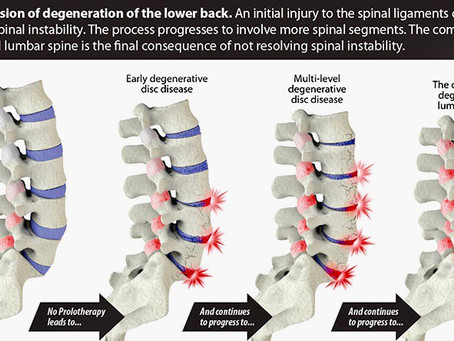 Spinal Ageing & Degeneration. Back Pain Treatment Solihull and Birmingham