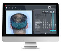 Hair Loss Diagnostics Birmingham