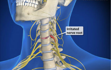 Neck Trapped Nerve (cervical radiculopathy)