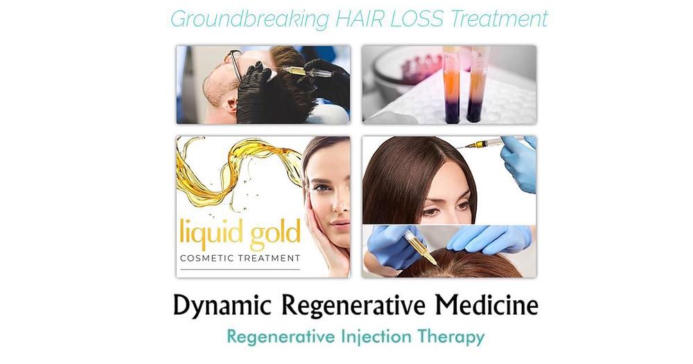 Effective Hair Loss Treatment Birmingham: What Is PRP Treatment?