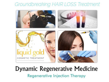 Effective Hair Loss Treatment Birmingham: What Is PRP Treatment?