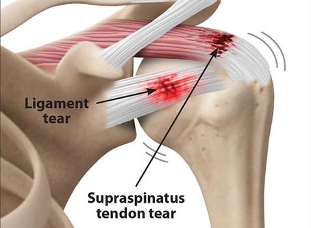 Shoulder Rotator Cuff Tear