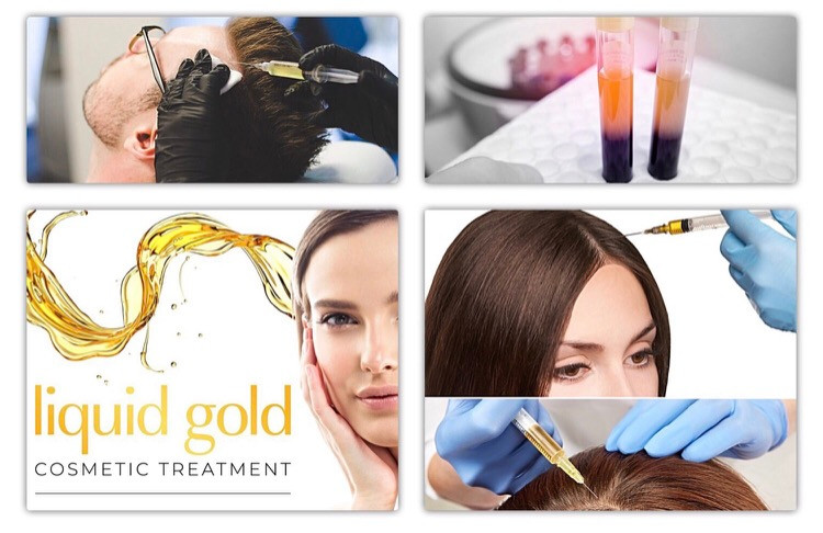 Full review of Platelet Rich Plasma (PRP) Treatment for Hair Loss (Alopecia)
