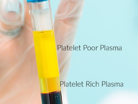 PRP Injection Treatment For Pain Relief Birmingham