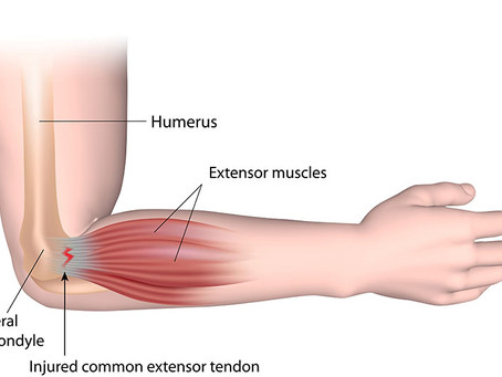Tennis Elbow (Epicondylitis)