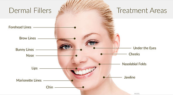 Dermal fillers Birmingham and Solihull