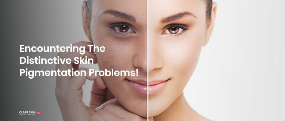Skin Hyperpigmentation Treatment - Dynamic Regenerative Medicine