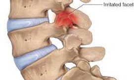 FACET IRRITATION / INFLAMMATION. DYNAMIC OSTEOPATHS SOLIHULL
