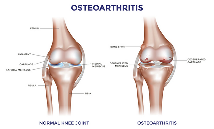 Treatment for joint arthritis Bromsgrove