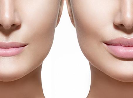 Lip FillerAugmentation/Enhancement Solihull & Birmingham