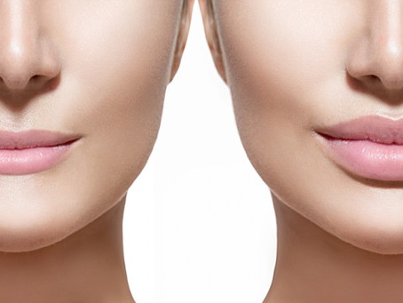Lip Filler Augmentation / Enhancement Solihull & Birmingham