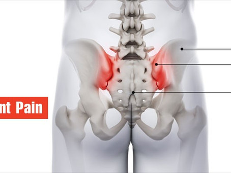 Back Pain and Sacroiliac (SI) Joint Pain?