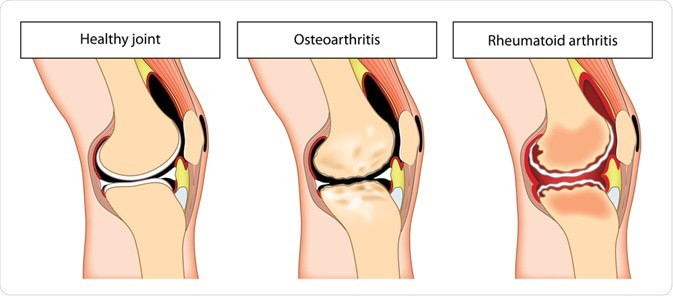 Rheumatoid arthritis treatment Birmingham