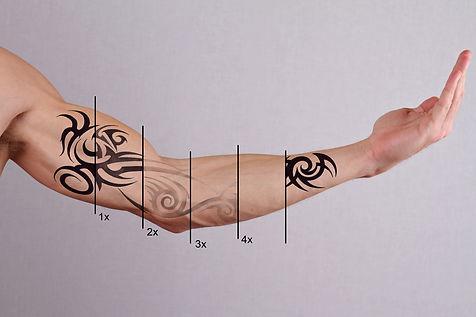 Laser tattoo removal treatment.jpg
