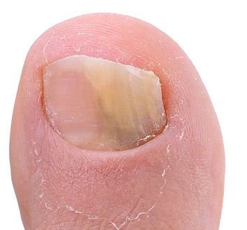 Toe nail fungus, also known as Onychomycosis