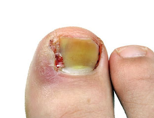 Ingrown Toes nails can be very painful