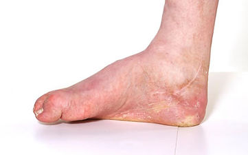 Charcot foot is associated with nerve damage, or neuropathy, caused from diabetes
