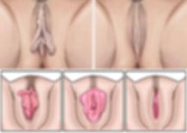 dr felipe bedran cirurgia plastica rio claro ninfoplastia cirurgia intima