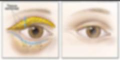 Dr Felipe Bedran Neto Cirurgia Plástica blefroplastia palpebra lifting facial botox preenchimento