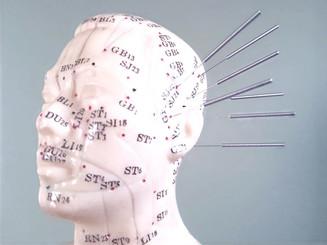 craniopuntura.jpg