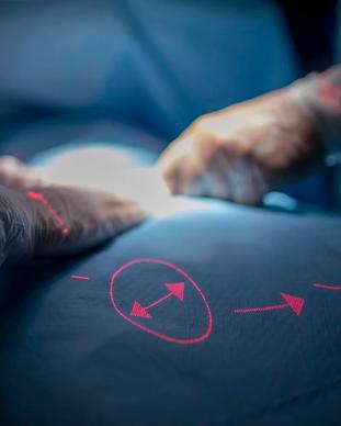 Merivaara laser terveysteknologia.webp