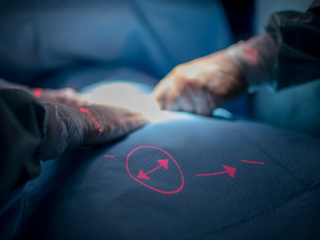 Laser mahdollisti heijastetun käyttöliittymän Merivaaran leikkausvalaisimessa