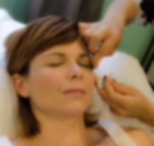 MJ Face Acupuncture.jpg