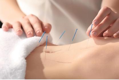 Signature Acupuncture