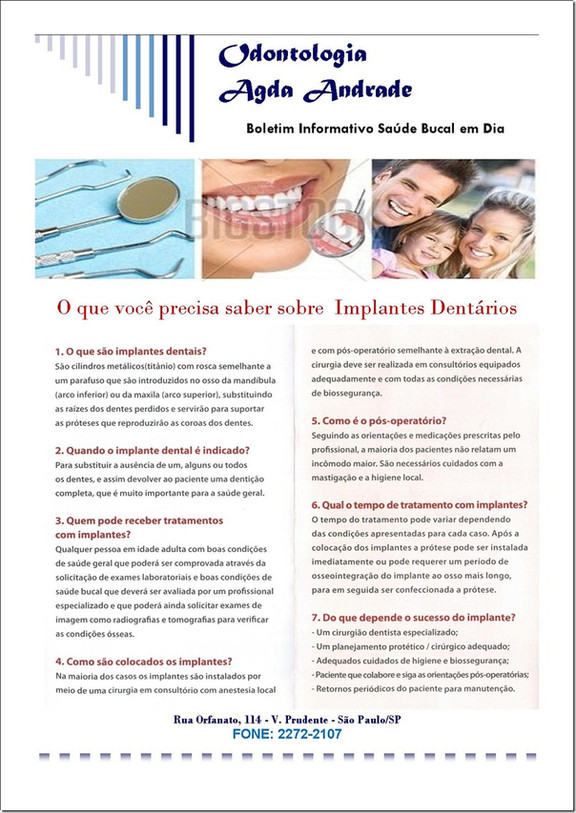 Implantes Dentários. Conheça mais sobre esta importante alternativa de reposição para dentes perdido
