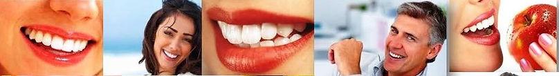 lentes de contato dental, clareamento dental, botox, peenchimento facial, skimbooster, microagulhamento, fios faciais