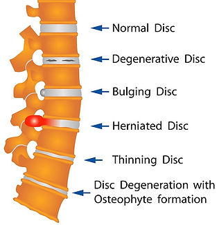 herniated-disc.jpg