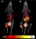 [Albira] Neuroendocrine tumors