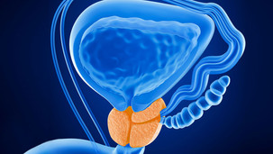 Prostate cancer leaves Australian men suffering in silence