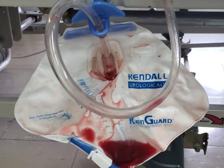 Sangrado en la orina (Hematuria)